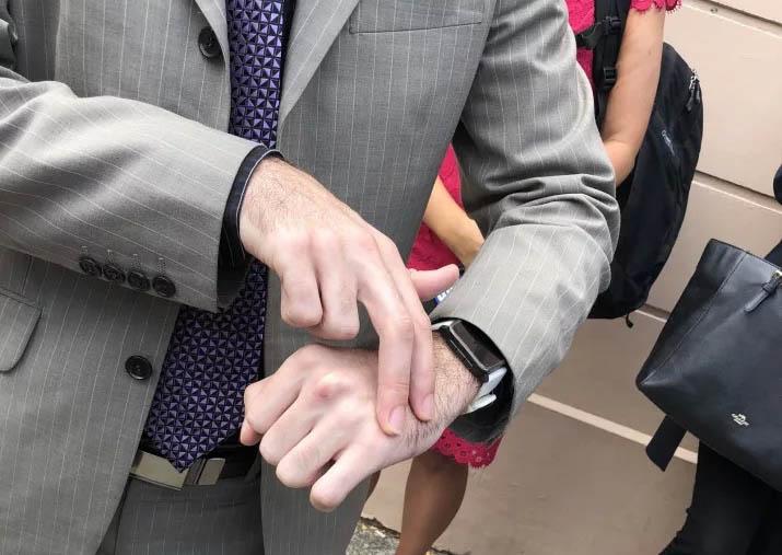 Рука, в которую Мяу-Мяу вшил чип от транспортной карты